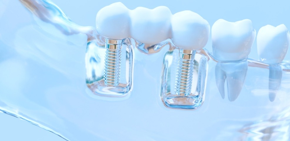 Dr Sebastien Melloul implant dentaire